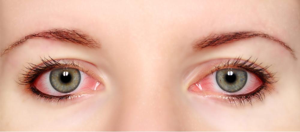 eye_redness