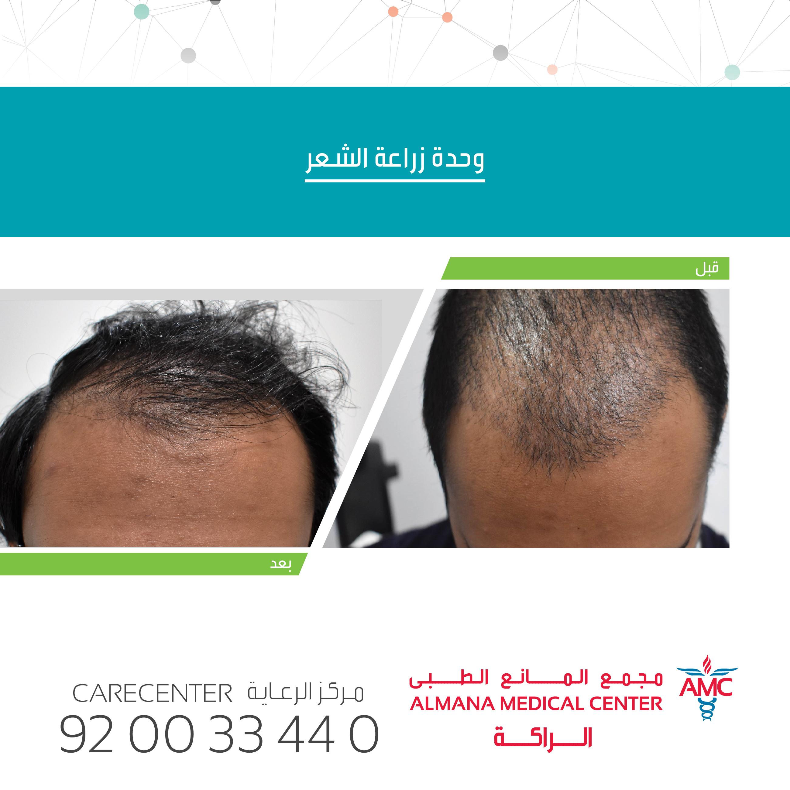 وحدة زراعة الشعر في مستشفيات المانع